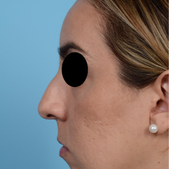 25-34 year old woman treated with Rhinoplasty before 3300075