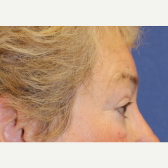 70 year old woman with a Brow Lift after 3588388