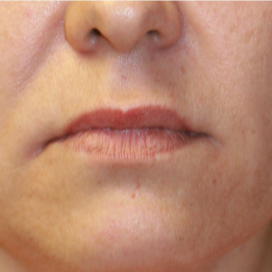 35-44 year old woman treated with Lip Lift before 3560876