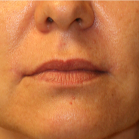 35-44 year old woman treated with Lip Lift after 3560876