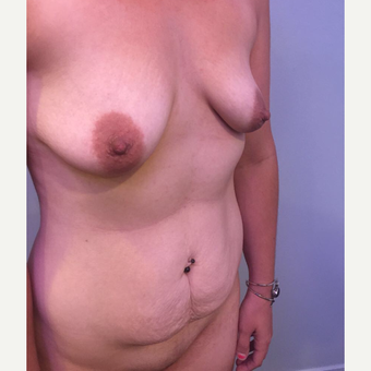 25-34 year old woman treated with Mommy Makeover before 3734018