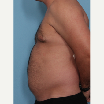 35-44 year old man treated with Fat Transfer before 3577856