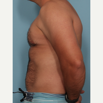 35-44 year old man treated with Fat Transfer after 3577856
