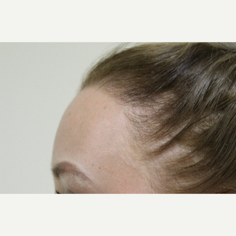 25-34 year old woman treated with Hair Transplant after 3762040