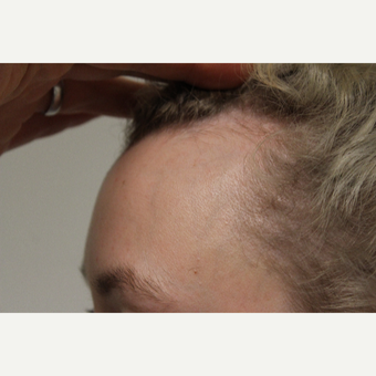 25-34 year old woman treated with Hair Transplant before 3762040