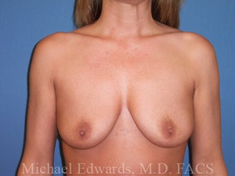 Breast Augmentation and Lift before 88383