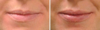 Lip Augmentation before 809789