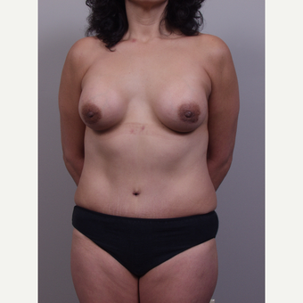 25-34 year old woman treated with Mommy Makeover after 3769492