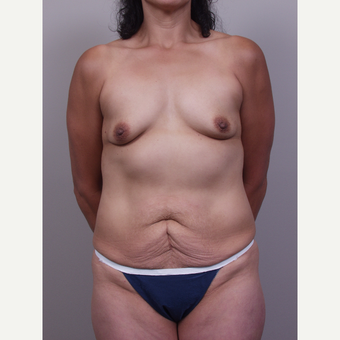 25-34 year old woman treated with Mommy Makeover before 3769492