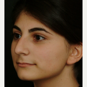17 or under year old woman treated with Rhinoplasty before 3582834