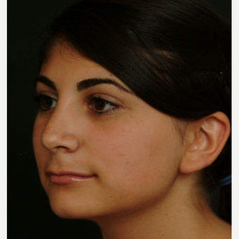 17 or under year old woman treated with Rhinoplasty after 3582834