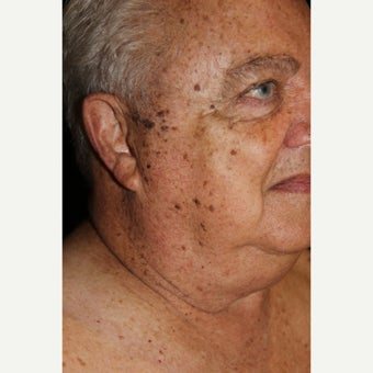 65-74 year old man treated with Age Spots Treatment before 2308440