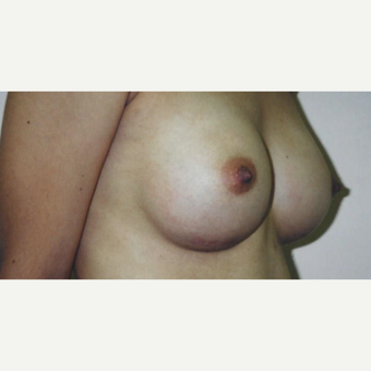18-24 year old woman treated with Breast Augmentation after 3629414