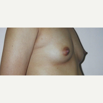 18-24 year old woman treated with Breast Augmentation before 3629414