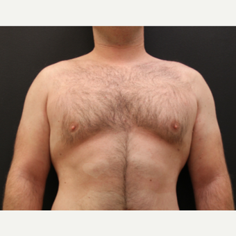 25-34 year old man treated with Male Breast Reduction before 3213907
