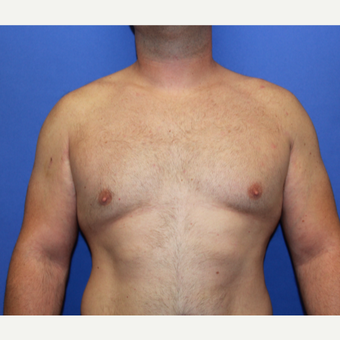 25-34 year old man treated with Male Breast Reduction after 3213907
