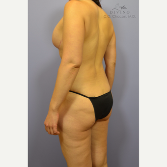 35-44 year old woman treated with Weight Loss after 3418883
