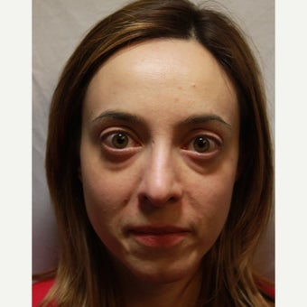 25-34 year old woman treated with Radiesse to her tear trough and lower eyelids before 2354017