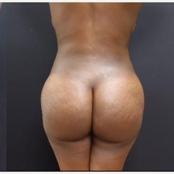 25-34 year old woman treated with Butt Lift after 3363867
