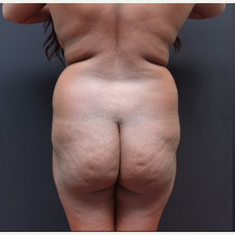 25-34 year old woman treated with Butt Lift before 3363867