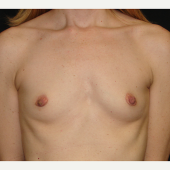 35-44 year old woman treated with Breast Implants before 3303975