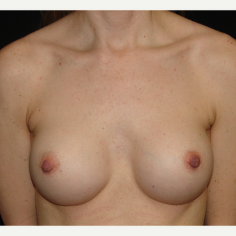 35-44 year old woman treated with Breast Implants after 3303975