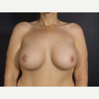 35-44 year old woman treated with Breast Implant Removal before 2130177
