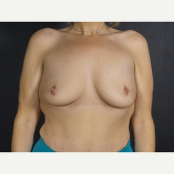 35-44 year old woman treated with Breast Implant Removal after 2130177