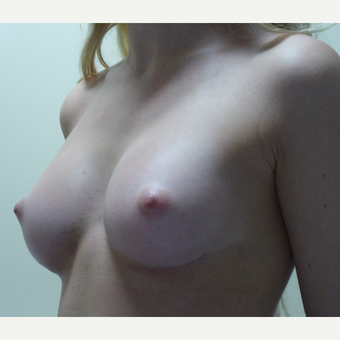 17 or under year old woman treated with Breast Implants after 3770009