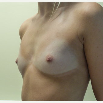 17 or under year old woman treated with Breast Implants before 3770009