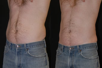 CoolSculpting Male to abdomen and love handles  before 1376635