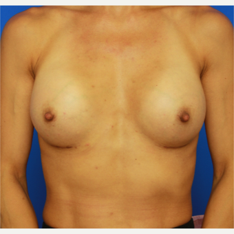 41- year old woman treated with Breast Implants after 3643794