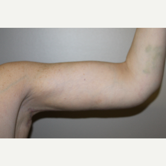 45-54 year old woman treated with Arm Lift after 3225206