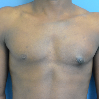 25-34 year old man treated with Male Breast Reduction after 3705152