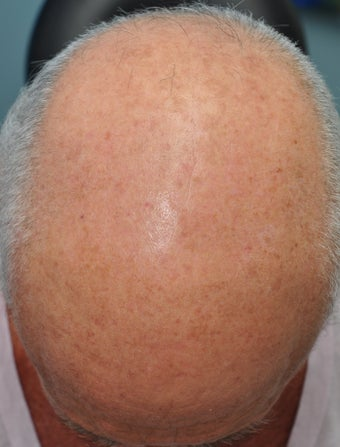 Male Patient Treated for Significant Sun Damage on Scalp after 744726
