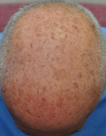 Male Patient Treated for Significant Sun Damage on Scalp