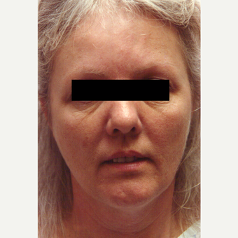 45-54 year old woman treated with Chemical Peel before 3543420