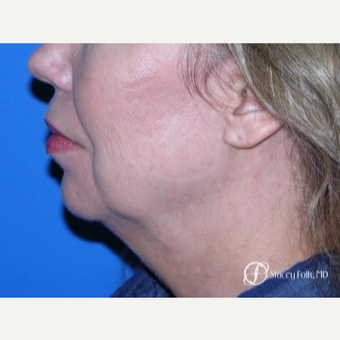 55-64 year old woman treated with Facelift before 3305374