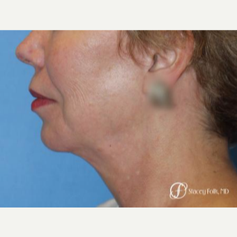 55-64 year old woman treated with Facelift after 3305374