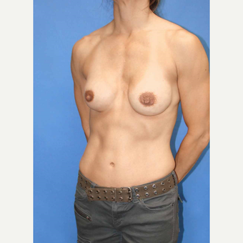 45-54 year old woman treated with Breast Fat Transfer before 2921182
