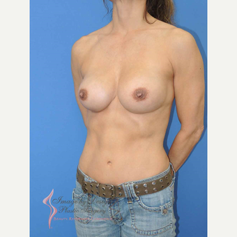 45-54 year old woman treated with Breast Fat Transfer after 2921182