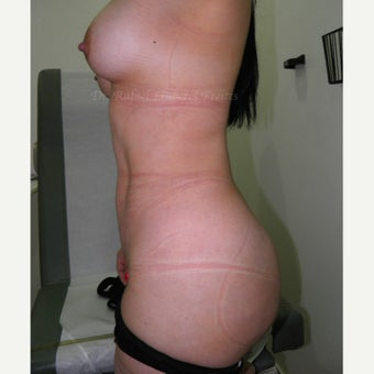 25-34 year old woman treated with Mommy Makeover after 1854049