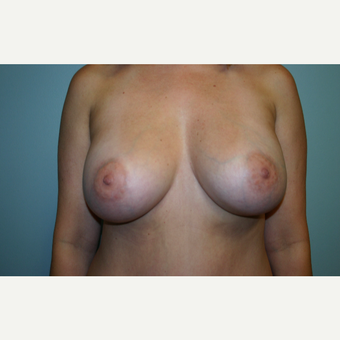25-34 year old woman treated with Breast Augmentation after 3564167