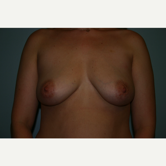 25-34 year old woman treated with Breast Augmentation before 3564167