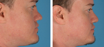 Revision Rhinoplasty before 1208292