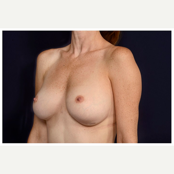 35-44 year old woman treated with Breast Implant Revision before 2898969