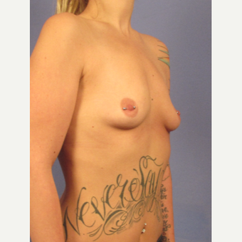 25-34 year old woman treated with Breast Implants before 3692145