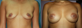 30 years female underwent bresst augmentation using 280 cc silicone gel implant after 932111
