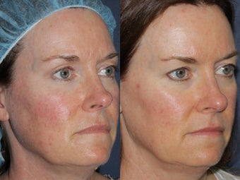 Before & After IPL after 806247