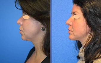 Rhinoplasty, Genioplasty (chin impant), submental liposuction before 1196080